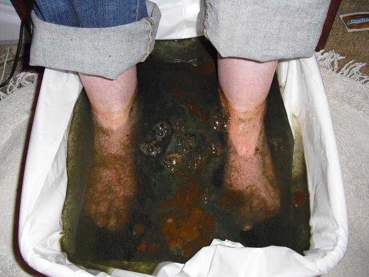 Petaluma Chiropractor | Petaluma chiropractic Ionic Foot Bath |  CA |