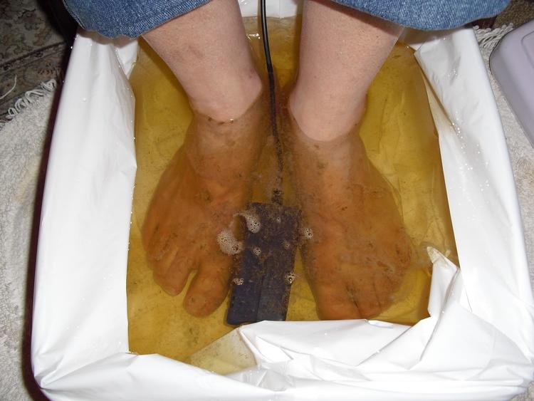 Petaluma Chiropractor   Petaluma chiropractic Ionic Foot Bath    CA  