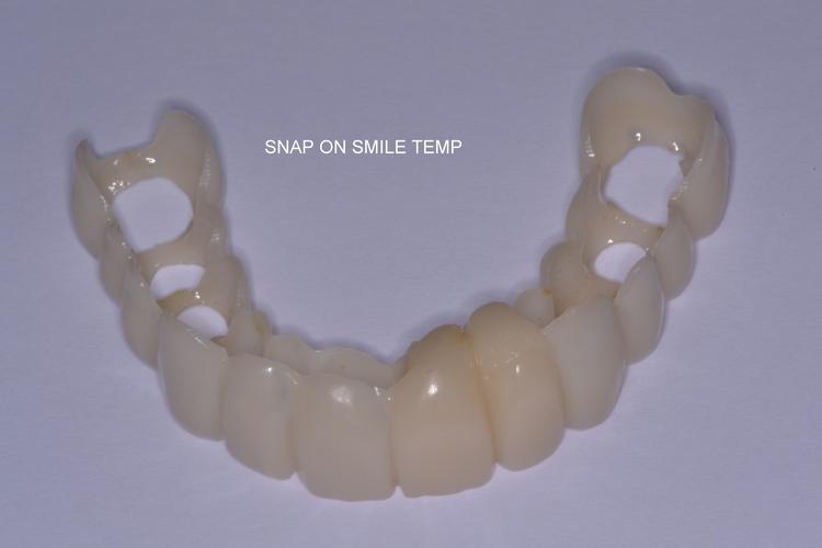 snap_on_smile.JPG