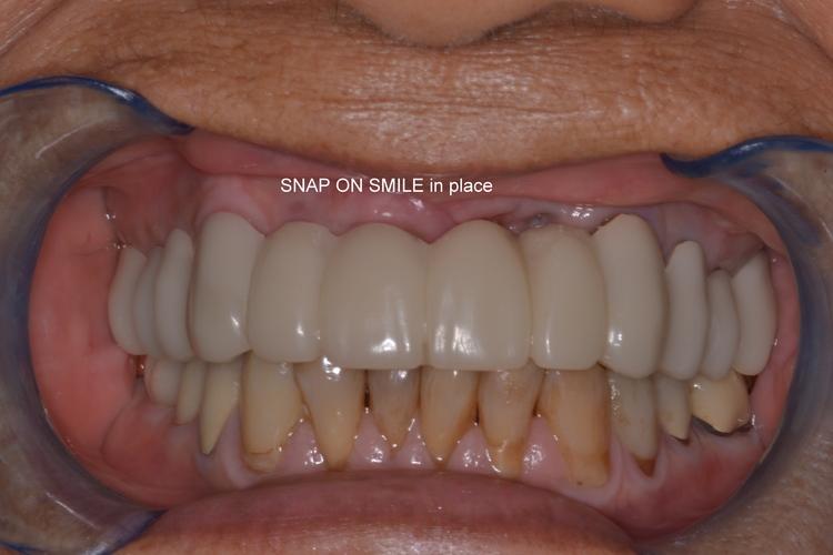 snap_on_smile_restored.JPG