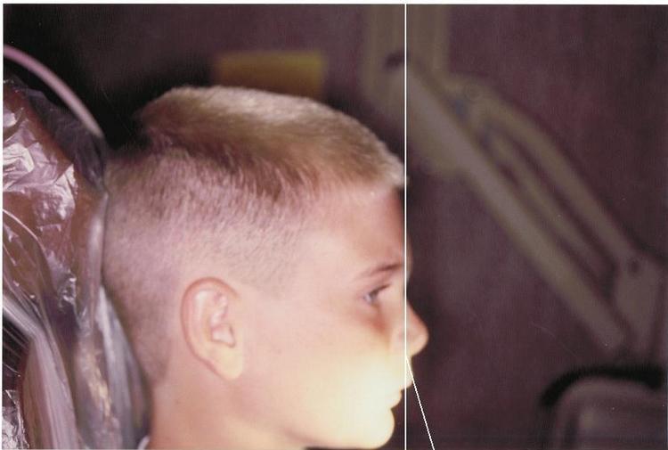 Facial_Lines_Before.JPG
