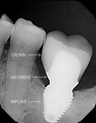 Implant_Labeled.JPG