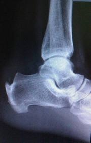 Downtown Raleigh Podiatrist | Downtown Raleigh Haglund's Deformity | NC | Carolina Family Foot Care |