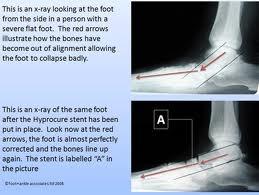 Fuquay Varina Podiatrist | Fuquay Varina HyproCure / Foot Care  | NC | Carolina Family Foot Care |