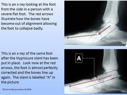 Downtown Raleigh Podiatrist   Downtown Raleigh HyproCure / Foot Care    NC   Carolina Family Foot Care  