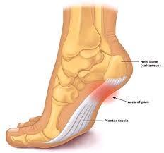 Downtown Raleigh Podiatrist | Downtown Raleigh Heel Pain/Fasciitis | NC | Carolina Family Foot Care |