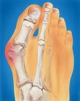 Downtown Raleigh Podiatrist   Downtown Raleigh Bunions   NC   Carolina Family Foot Care  