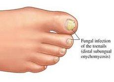 Fuquay Varina Podiatrist | Fuquay Varina Nail Care | NC | Carolina Family Foot Care |