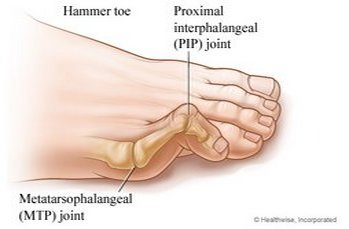 Downtown Raleigh Podiatrist   Downtown Raleigh Hammertoes   NC   Carolina Family Foot Care  