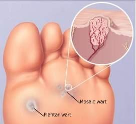 Fuquay Varina Podiatrist   Fuquay Varina Plantar Warts   NC   Carolina Family Foot Care  