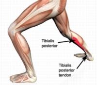 Fuquay Varina Podiatrist | Fuquay Varina Posterior Tibial Dysfunction | NC | Carolina Family Foot Care |