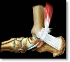 Downtown Raleigh Podiatrist | Downtown Raleigh Posterior Tibial Dysfunction | NC | Carolina Family Foot Care |