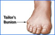 Downtown Raleigh Podiatrist | Downtown Raleigh Taylor's Bunion | NC | Carolina Family Foot Care |