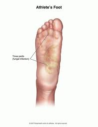 Downtown Raleigh Podiatrist   Downtown Raleigh Athlete's Foot   NC   Carolina Family Foot Care  
