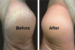 Downtown Raleigh Podiatrist | Downtown Raleigh Pedicure/Spa Care | NC | Carolina Family Foot Care |