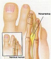Fuquay Varina Podiatrist | Fuquay Varina Morton's Neuroma | NC | Carolina Family Foot Care |
