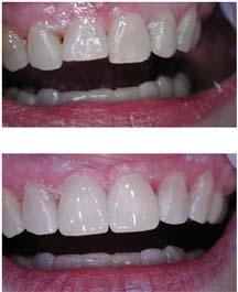 Spokane Valley Dentist | Dentist in Spokane Valley |  Dr. Marc Weiand | Weiand & Weiand, D.D.S., P.S | WA