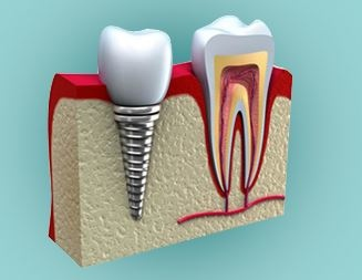 Implant_img.JPG