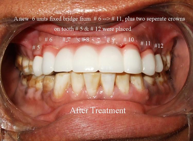 _10b__Front_fixed_bridge_after_treatment.jpg