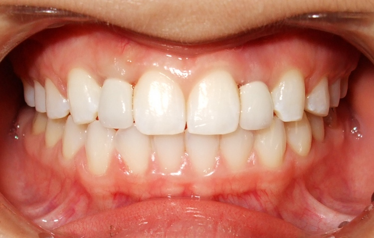 _1b__Treatment_After_placement_of_2_dental_implants.jpg