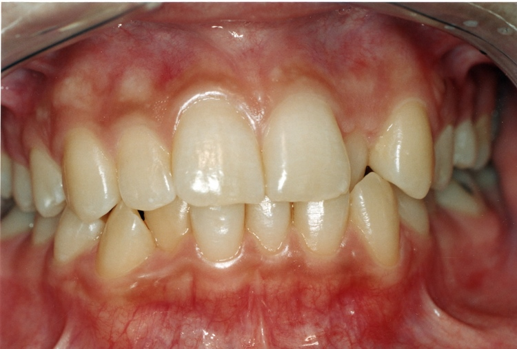 _2a__Before_orthodontics_Treatment.JPG