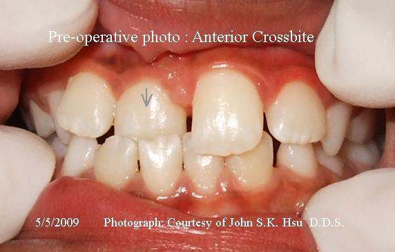 _3a__Anterior_Cross_bite_before_treatment.jpg