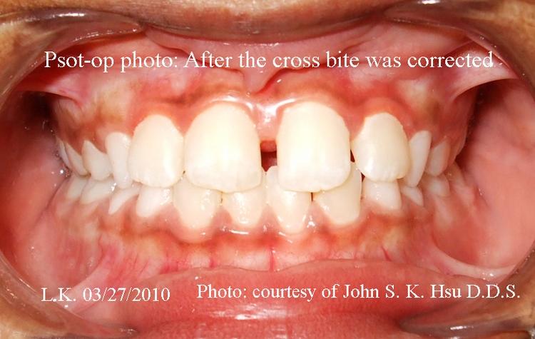 _3b__Anterior_crossbite_corrected_after_Treatment.jpg