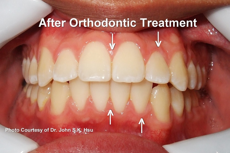 _4b__After_orthodontics_Treatment_is_completed.jpg