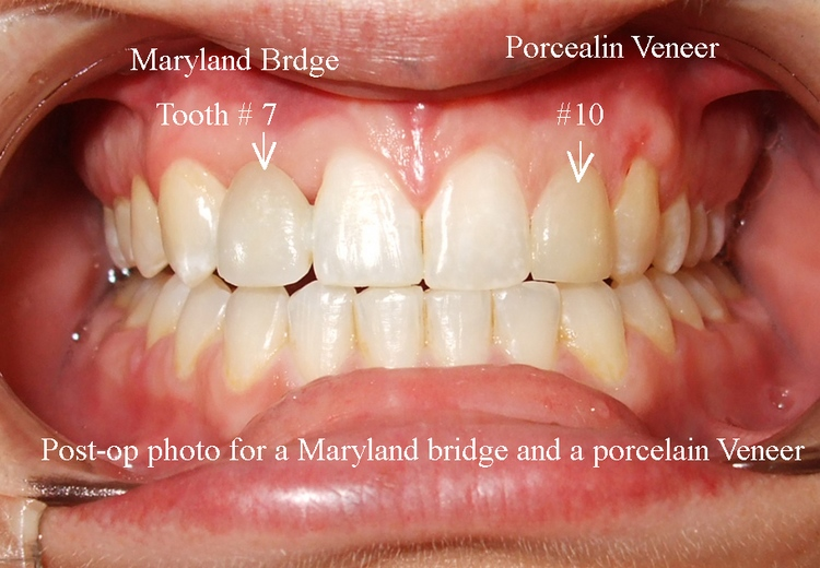 _5b__After_placement_of_Maryland_Bridge___Veneer.jpg