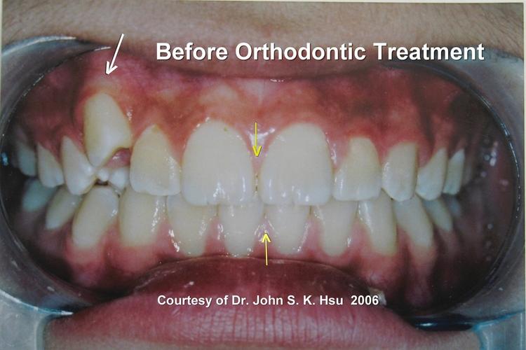 _6a__Before_orthodontics_Treatment.jpg