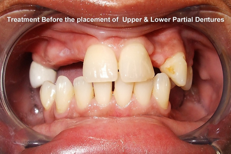_7a__Before_Placement_of_Upper___Lower_Removable_Partial_Denture.jpg