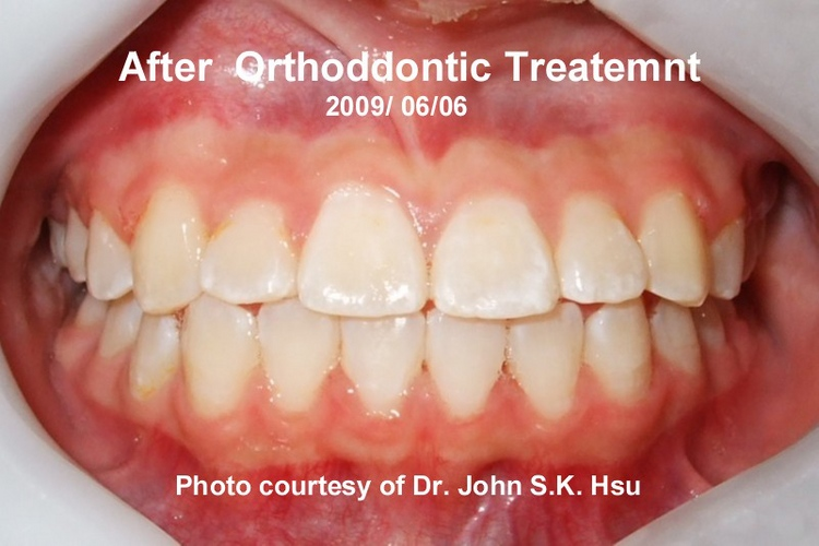 _8b__After_Orthodontics_Treatment_is_completed.jpg