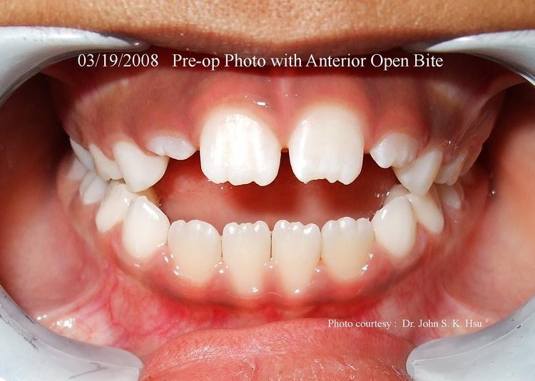 _9a__Anterior_open_bite_before_treatment.jpg