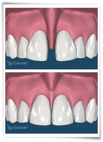 General and Implant Dentistry, PA in Clearwater FL