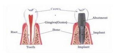 Corunna Dentist   Corunna dental Dental Implants    MI
