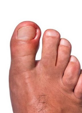Great Falls Podiatrist | Great Falls Ingrown Toenails | MT | Bruce D. Fisher |