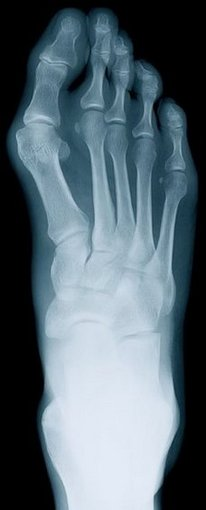 Great Falls Podiatrist | Great Falls Rheumatoid Arthritis | MT | Bruce D. Fisher |
