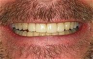 smile_makeover_aft.jpg