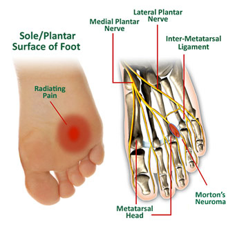Fairmont Podiatrist | Fairmont Morton's Neuroma | WV | Podiatry |