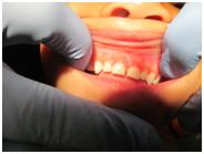 infants_new_teeth.png