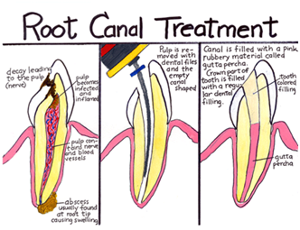 root_canal.png