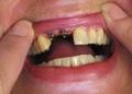 Implants Abutments
