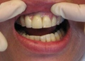 Implants Cemented