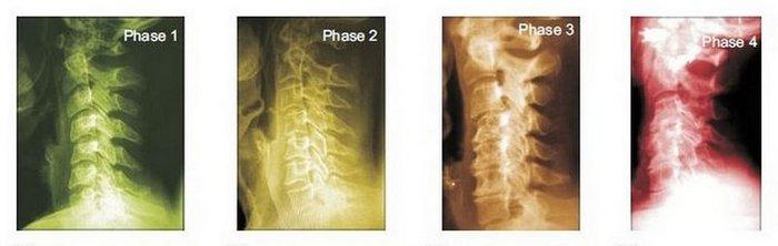 Walworth Chiropractor | Walworth chiropractic Spinal Degeneration |  WI |