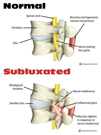Walworth Chiropractor | Walworth chiropractic What is a Subluxation |  WI |
