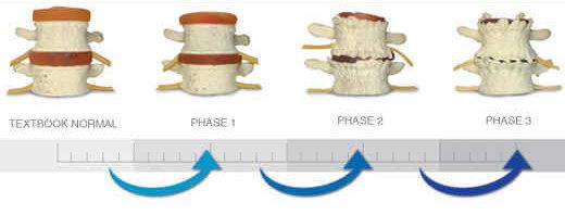 Holland, MI Chiropractor   Holland, MI chiropractic Spinal Degeneration    MI  