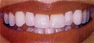 Teeth_Whitening_aft.jpg