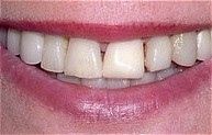 beautiful_veneers_bef.jpg