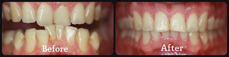 Dental in University Place WA