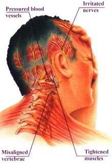 headache_graphic.jpg